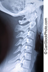 X-ray - An X-ray of a spine
