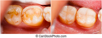 Before and After Treatment - Human denture before and after...