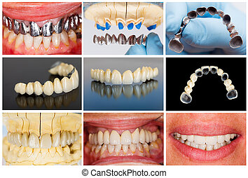 Technical steps of dental bridge - Photographic...
