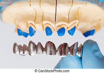 Dental Crown - Dental metal basis denture put on dental...