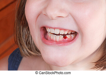 fallen baby tooth in girl mouth