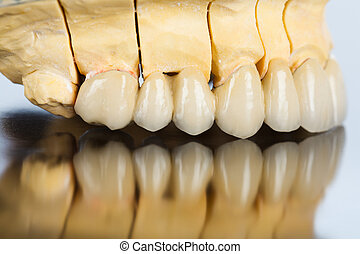 Lateral vew of dental bridge - An abstract view of a...