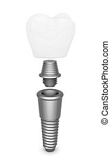 Dental implant isolated on white background