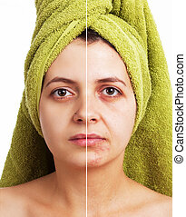 Face before after - Woman with spotty skin with deep pores...