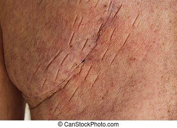 Lung Surgery Scar - After removing the Steri Strips this is...