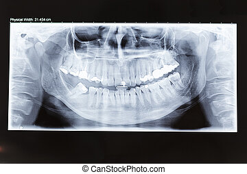 X-Ray - Human dental panoramic x-ray photo