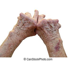 Rheumatoid Arthritis - Hand of a woman who has Rheumatoid...