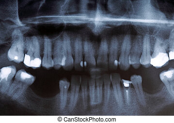 X-ray scan of humans teeth - Panoramic x-ray image scan of...