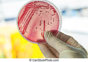 Petri dish with bacteria - Petri dish with red bacteria, lab...
