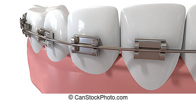 Human Teeth Extreme Closeup With Metal Braces - An extreme...