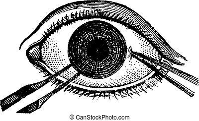 Iridectomy, vintage engraving - Iridectomy, showing pincers...