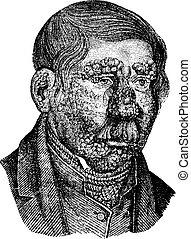 Leprosy or Hansen's Disease, vintage engraving