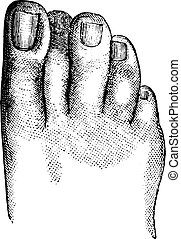 Faulty position of the second toe, vintage engraving.