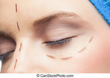 Extreme close up on relaxed patient with dotted lines on the...