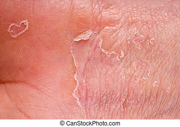 eczema closeup - eczema on male hand with skin peeling