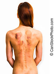 Rear view of woman with marks from sliding cupping therapy