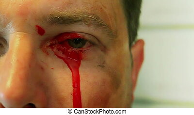 Bleeding From one eye, this is a professional makeup effect...