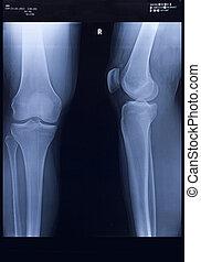 X-Ray, Knee - X-Ray, Human Knee and Leg