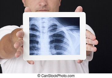 X-ray on the digital tablet - X-ray on the white digital...