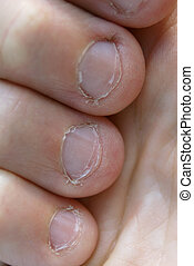 Bitten Fingernails - Very chewed and bitten fingernails in...