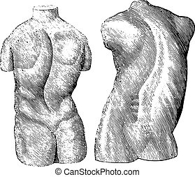 Cast of two varieties of scoliosis, vintage engraving. -...
