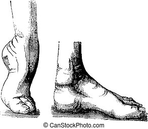 Clubfoot or Club foot or Congenital talipes equinovarus CTEV...