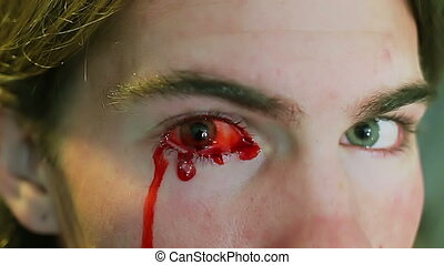 Young Man bleeding from eye