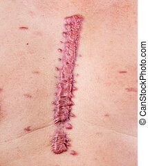 hypertrophic scar - big swell cicatrix - hypertrophic scar