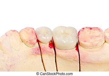 dientes, rehabilitación
