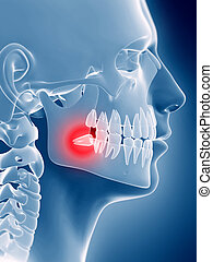 An impacted wisdom tooth - 3d rendered illustration of an...