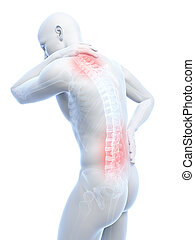 Painful back and neck