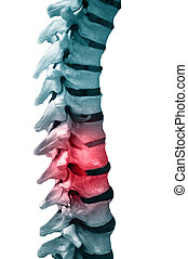 back pain - Human Spinal-column model, isolated on white,...