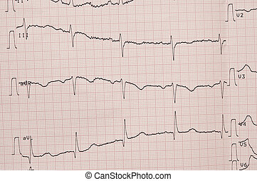 Cardiogram ECG shows the heart beat