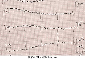 Kardiogram, ecg, widać, serce, bębnić