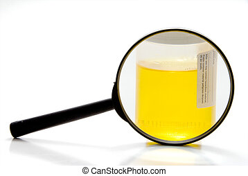 Urine Sample - A fresh urine sample in a medical container