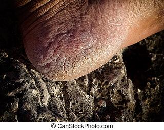 Cracked heel - Closeup view of cracks on a heel.