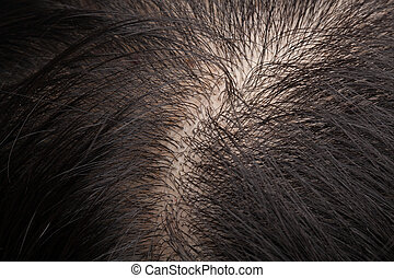 Thinning hair and scalp - Closeup head with thinning hair...