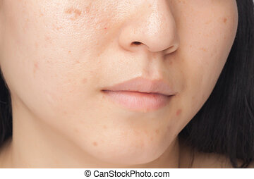 Acne spots - Woman with oily skin and acne scars