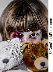 Child abuse concept, Sad girl Violence, despair