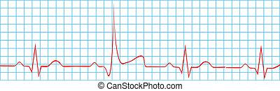 Coração, ataque, apoplexia, ligado, EKG