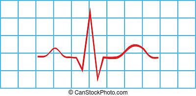 electrocardiograma, seno, ritmo