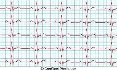 Normal Sinus Rhythm - Heart Normal Sinus Rhythm On...