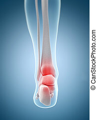 Highlighted ankle - 3d rendered illustration of the inflamed...