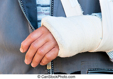 Broken hand - Man's arm in cast and sling