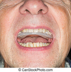 Close up of teeth guard in senior mouth - Macro close up of...