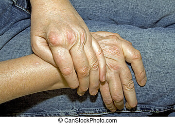 Rheumatism - Hands of a woman with rheumatism