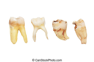 teeth on a white background. macro