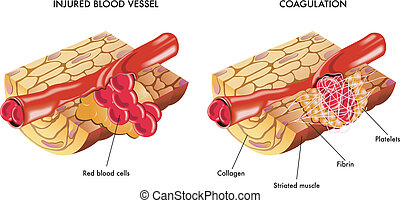 Blood coagulation - medical illustration of the process of...