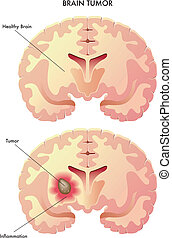 brain tumor - medical illustration of the effects of the...