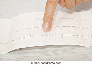 Doctor analyzing electrocardiogram
